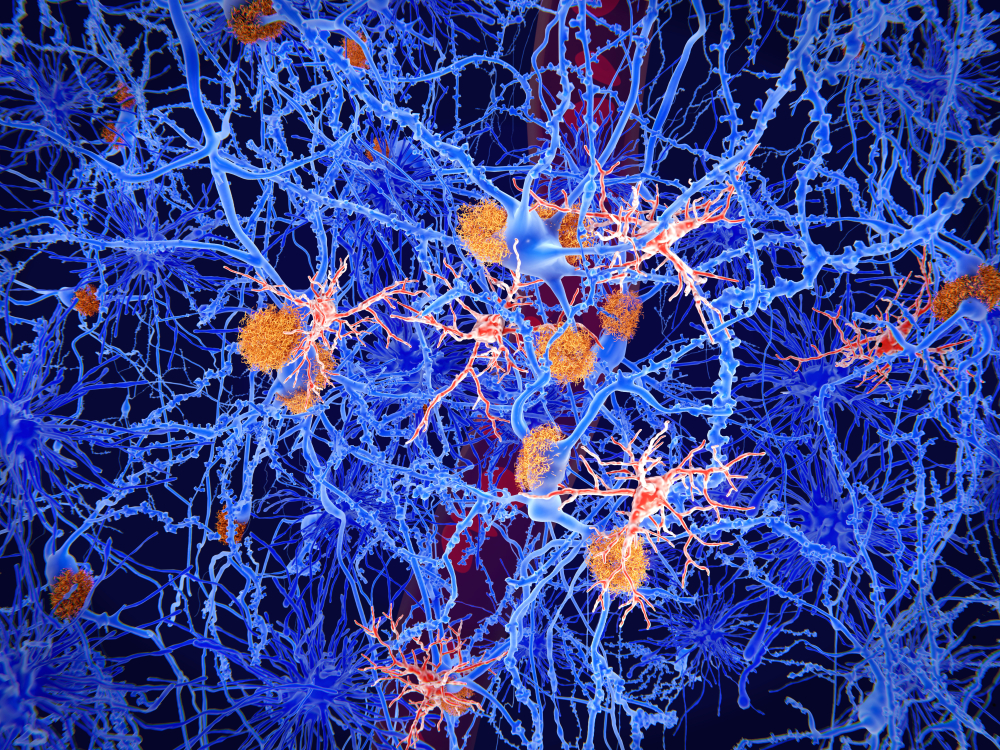 Microglia cells (red) play an important role in the pathogenesis of Alzheimer's disease. Microglia are specialised macrophages that restrain the accumulation of amyloid (orange plaques).