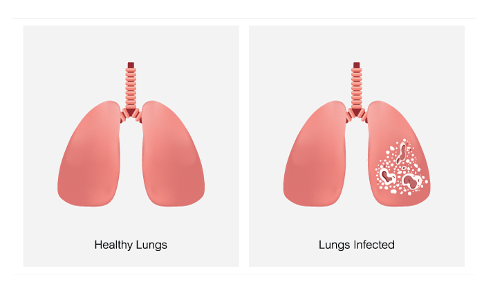 Healthy Lugs vs. Bacterial Lung Infection