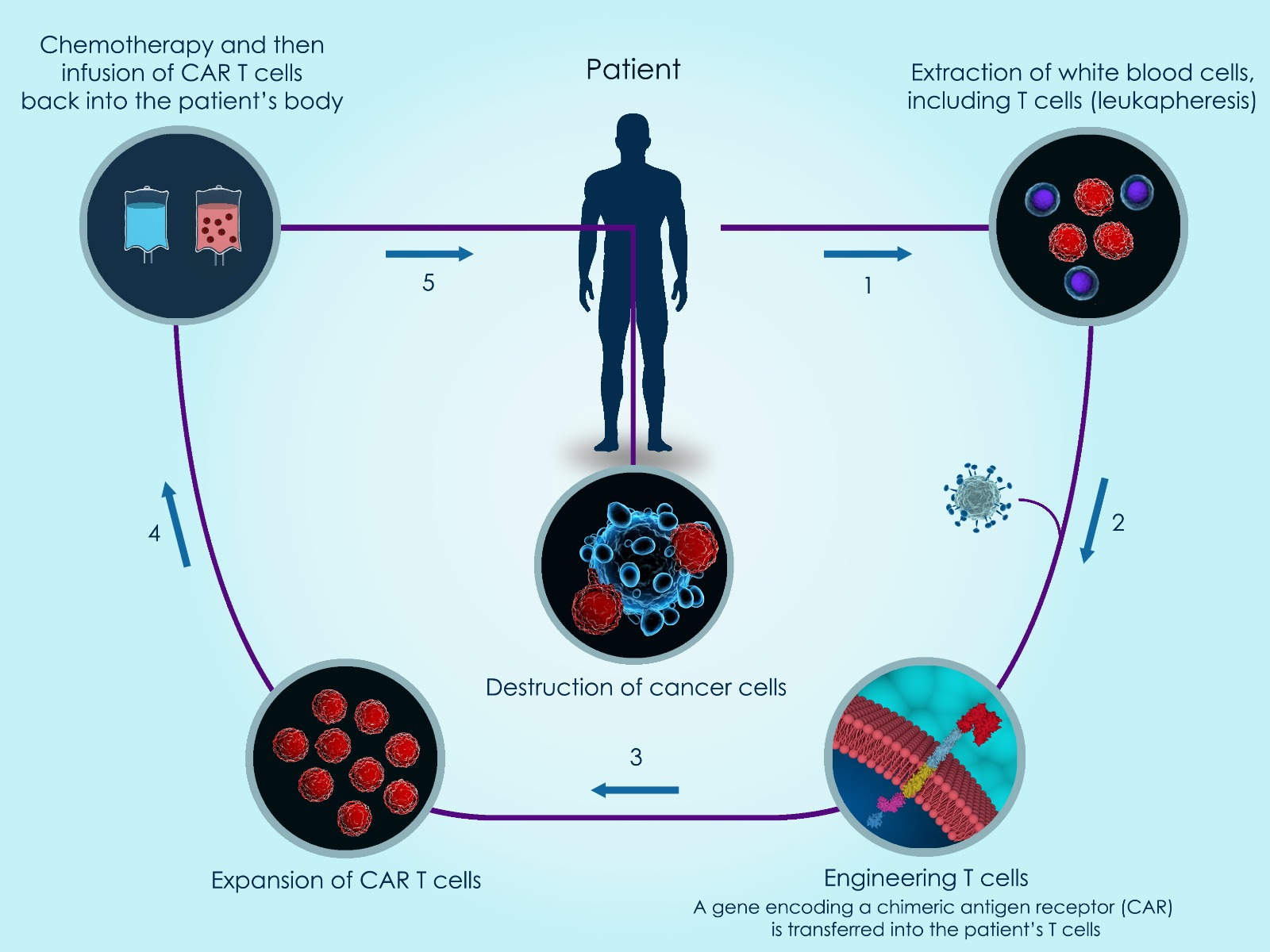 CAR T Cells Into Patient Body